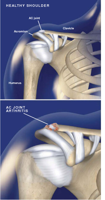 This condition, also called AC joint arthrosis, is a degeneration of the joint at the top of the shoulder where the acromion meets the clavicle. acromioclavicular joint arthritis in prescott az