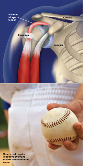 This condition is an irritation or inflammation of the biceps tendon at the shoulder. inflammation of the biceps tendon prescott az