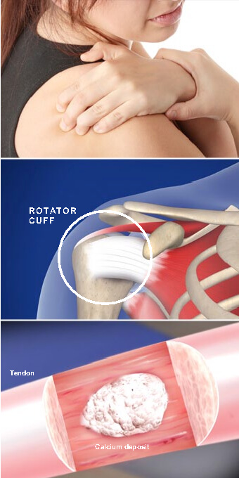 This painful condition occurs when calcium deposits form in tendons of the rotator cuff. calcific tendinitis of the shoulder prescott az