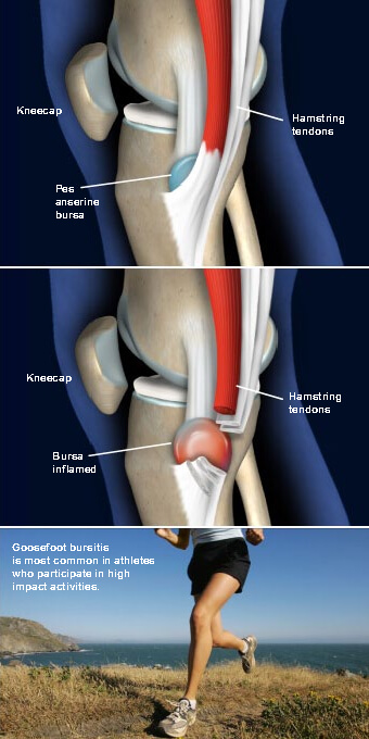 This condition is an inflammation of the pes anserine bursa, a fluid-filled sac between the tibia and the tendons of the hamstring muscle on the inner side of the knee. goosefoot knee prescott az