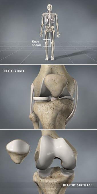 Osteoarthritis is a gradual breakdown of cartilage in the joints. knee arthritis prescott az