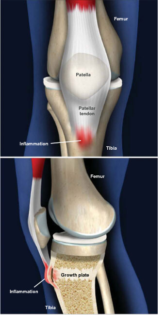 This is an inflammation that occurs where the patellar tendon attaches to the tibia. osgood-schlatter disease prescott az