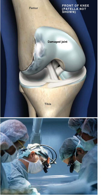This condition is characterized by the death of an area of cartilage and bone in the knee joint. osteochondritis dissecans prescott az