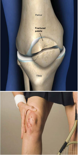 This condition is a crack or fracture of the patella, the bone on the front of the knee that covers the knee joint.patella fracture prescott az