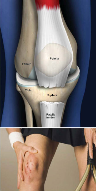 This condition occurs when the tendon that holds the patella, (the knee cap), to the tibia tears and splits apart, allowing the patella to slide upward. This causes pain and an inability to straighten the knee. patellatendonrupture prescott az