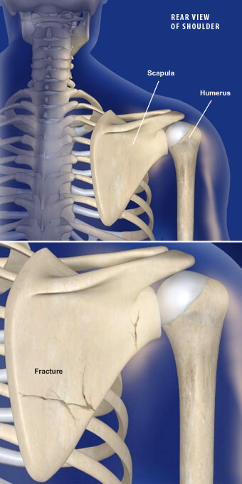 This condition is a break of the scapula, the triangular bone that contains the shoulder socket. scapula fractures prescott az