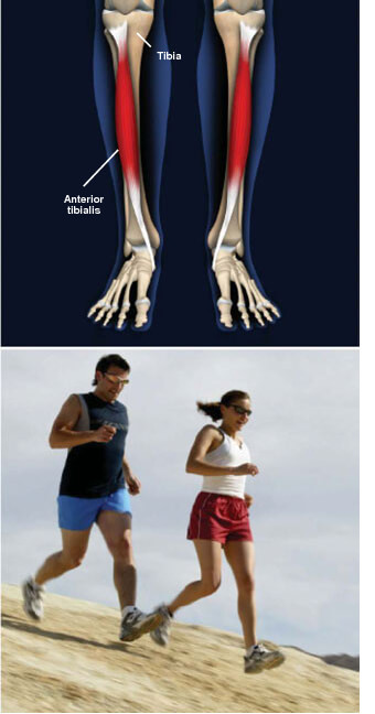 This condition is a painful swelling, usually along the front of the lower leg, shinsplints prescott az