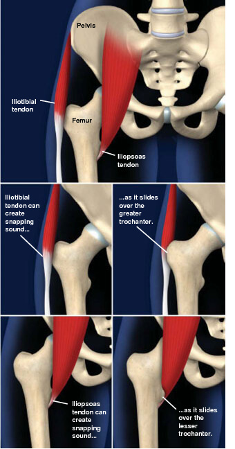This common condition is a sensation of snapping or catching in the hip. snapping hip syndrome prescott az