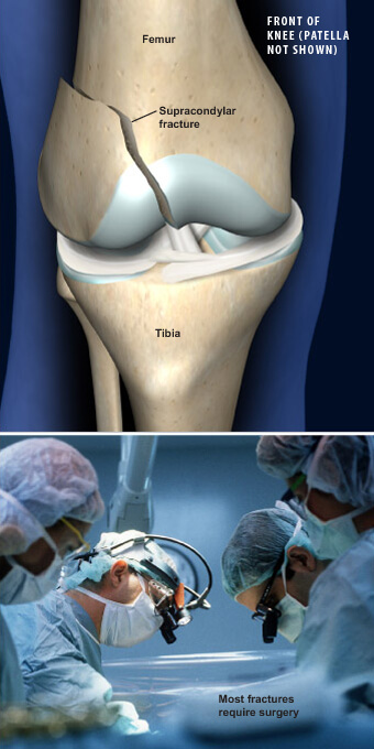This condition is a break in the femur at the knee joint., supracondylar femoral fracture prescott az