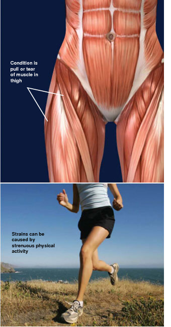 overstretching and tearing of muscle of the thigh. muscle strain injuries of the thigh prescott az