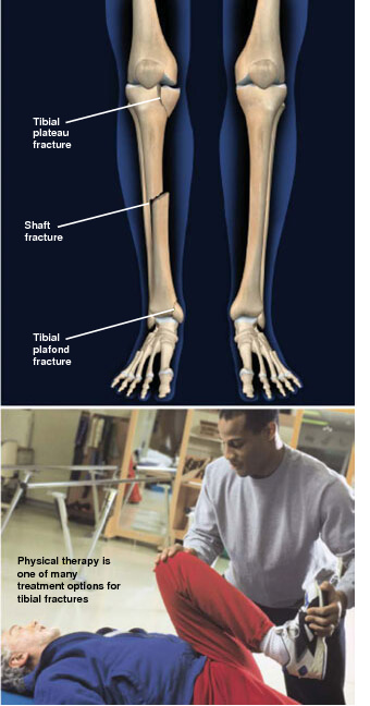 This condition is a break in the shin bone, called the tibia. Tibial fractures prescott az
