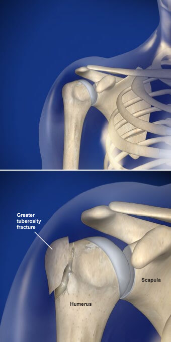 This condition is a fracture of the bony bump that is located opposite of the head of the humerus. fractures of the tuberosity prescott az